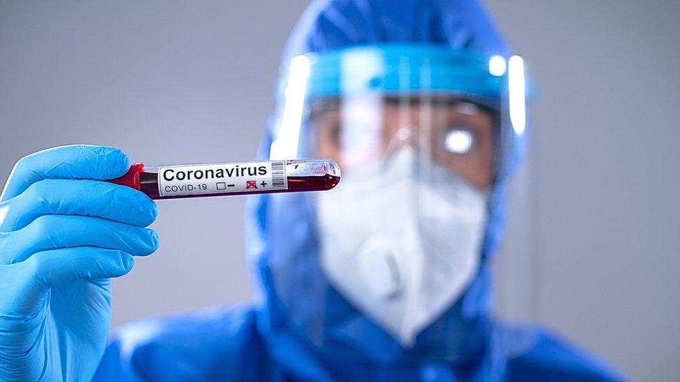 Brasil preparará un millón de dosis de la vacuna china, tras recibir 600 litros de insumos