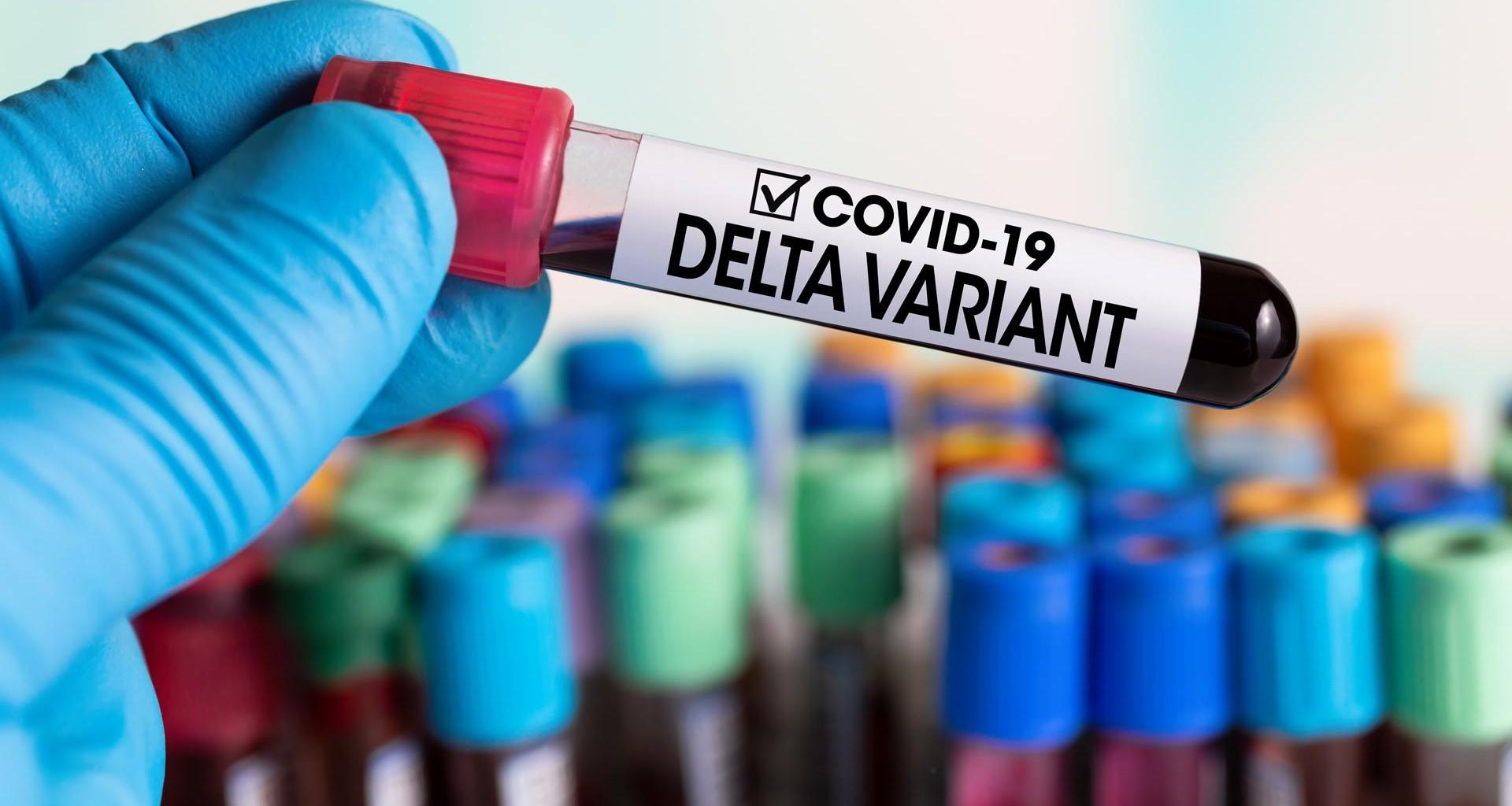 """Secretario de Salud de Bogotá: """"Ya debe haber variante delta, es casi imposible que no haya llegado"""""""